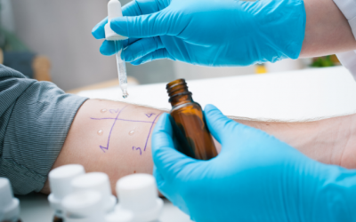 Ce qu'on ne dit pas sur le test d'allergie par piqûre de la peau